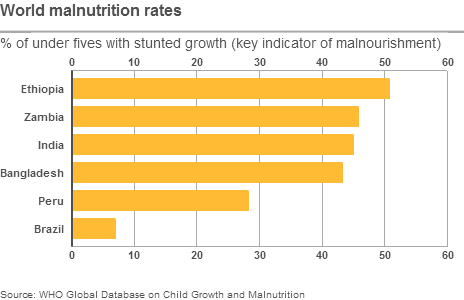 A table showing rates of malnutrition in Ethiopia, Zambia, India, Bangladesh, Peru and Brazil