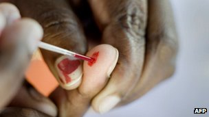 A person does a blood test at a roadside Aids testing table in Langa, a suburb of Cape Town in December 2010