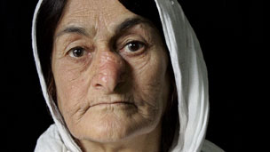 Woman, with facial deformity caused by mustard gas
