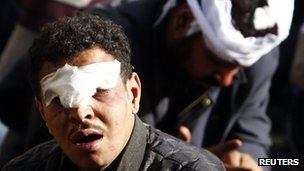 A protester who was injured during overnight clashes between supporters and opponents of Egyptian President Mohamed Mursi, is detained in front of the presidential palace in Cairo, December 6, 2012. 