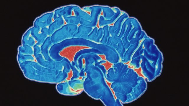 Coloured CT (Cat) scan of a healthy brain