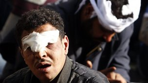 A protester who was injured during overnight clashes between supporters and opponents of Egyptian President Mohamed Mursi, is being detained in front of the presidential palace in Cairo, December 6, 2012.