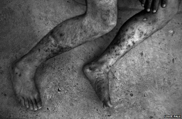 Multiple track marks from injecting heroin are seen in the legs of a Mexican man in Ciudad Juarez 