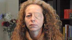 Ester Quintana who was blinded by a suspected police projectile at a demonstration in Barcelona