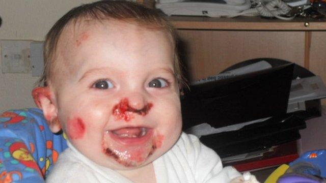 Epidermolysis bullosa parents work to raise its profile ...