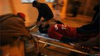 An injured rescue worker is wheeled from the scene of a bombing at a snooker hall in Quetta, 10 January 2013