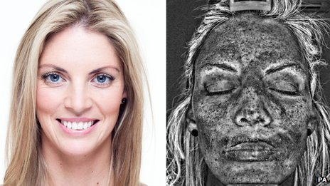 A model alongside an image of her damaged skin detected by the UV scanner