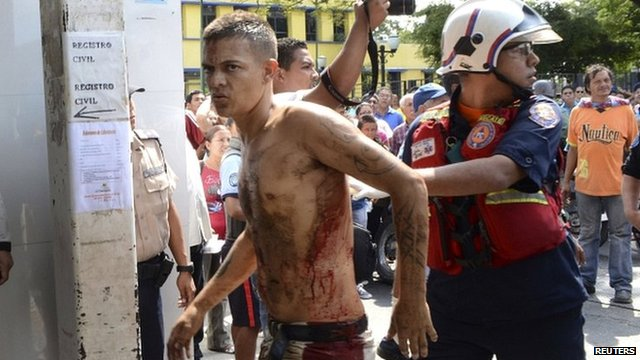 A rescue worker walks with an unidentified injured man during an uprising at the Centro Occidental prison in Barquisimeto, Venezuela