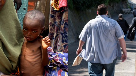 malnourished child and obese man
