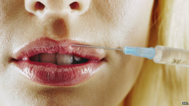 lip fillers injection