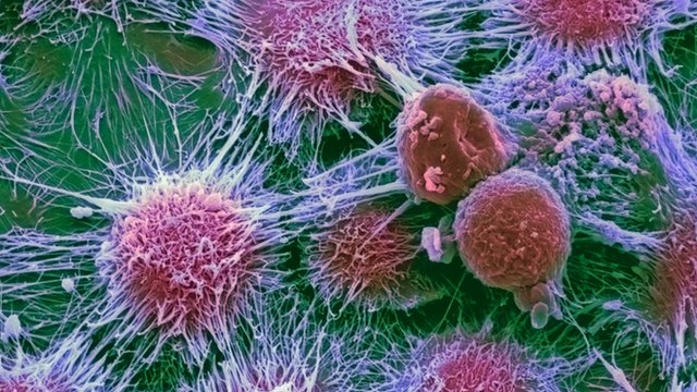 Kidney cancer cells