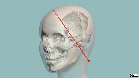 Malala 3D surgery