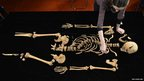 Medieval bones uncovered in Leicester
