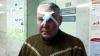 Viktor poses for a photograph after receiving treatment for injuries in a hospital in Chelyabinsk, 15 Feb.