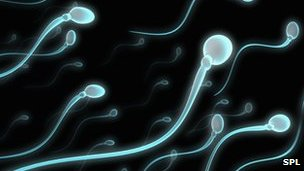 Sperm