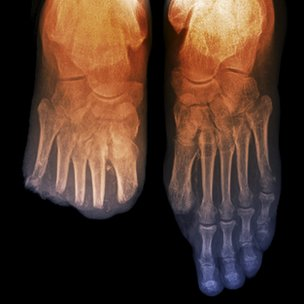 Foot x-ray