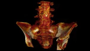 CT scan of mummy