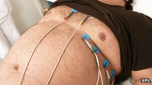 Obese man having heart exam
