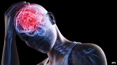 Diagrammatic image of brain