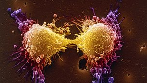 Coloured scanning electron micrograph of two prostate cancer cells in the final stage of cell division.