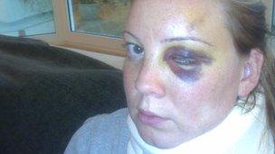 Natalie Creane with bruising