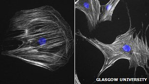 "Stem cells before and after they have been ""nanokicked"""