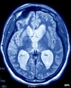 MRI scan of brain