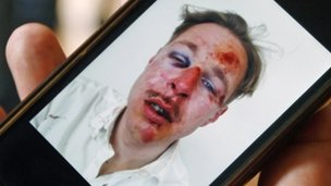 Photo of Wilfred de Bruijn with battered face