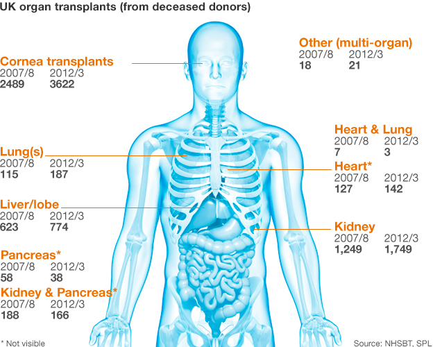 Organ donation graphic