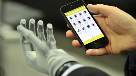 Touch Bionics limb with mobile app