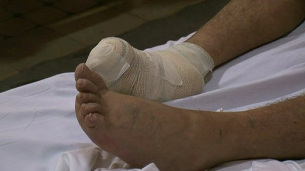 Test promises end to leprosy torment