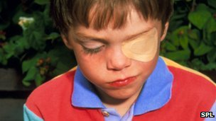 boy wearing an eye patch