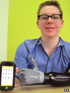 Patrick Kane and his app-controlled bionic arm