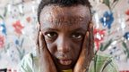 Suleiman Fatul Saim, 10, from Dar al-Salam in North Darfur, posing for a picture in El-Fasher, the administrative capital of North Darfur, on April 2, 2013. Suleiman suffered burns to more than 90 percent of his body when his brother detonated a device found near their house in November 2006 