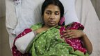 A Bangladeshi garment workers with her arm amputated in hospital in Dhaka (28 April 2013)