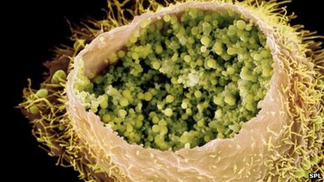 An electron microscope image of a cell infected by the bacteria of the STI chlamydia trachomatis