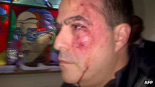 Picture released Julio Borges' Primero Justicia party showing him after clashes in parliament