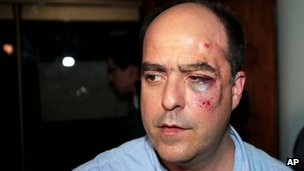 Opposition lawmaker Julio Borges with facial bruises after clashes. Photo: 30 April 2013