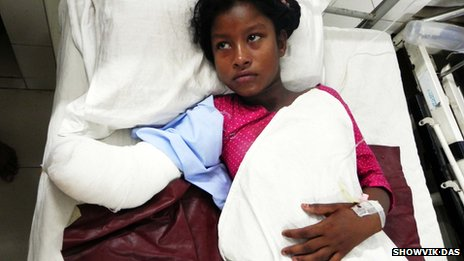 Aana, the girl whose hand was amputated