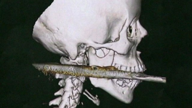 The image released by Rio de Janeiro State Health Department shows the spear that was shot through the mouth of Elisangela Borborema Rosa