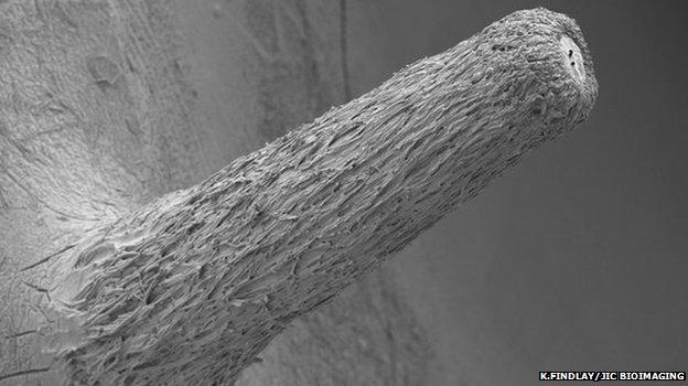 Microscopic picture of the fungal pathogen, Hymenoscyphus pseudoalbidus, which causes ash diebback (Image: Kim Findlay/John Innes Centre Bioimaging)