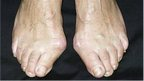 Bunions on a woman&#039;s feet