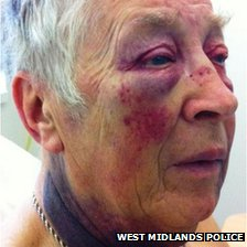Facial injuries of Bill Hopkins from Digbeth