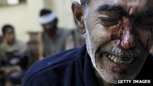 A man cries after his son and daughter died in an attack in Syria