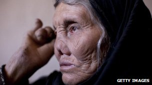Woman with leprosy in Afghanistan