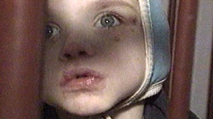 Child in bed (Siret, 1990)
