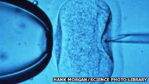 Injecting a sperm cell into a human egg during IVF research