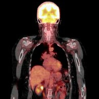 Combination PET/CT scan to pick up cancer