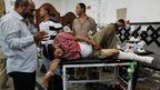 Injured man is treated at a local hospital in Cairo (8 July 2013)
