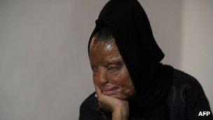 Indian acid attack survivor Sonali Mukherjee at home in Delhi on December 5, 2012
